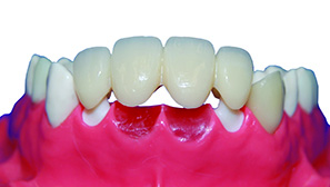 WZ Anterior Bridge_Clean Bkgrd